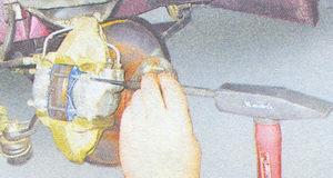 направляющие пальцы тормозных цилиндров ваз 2107